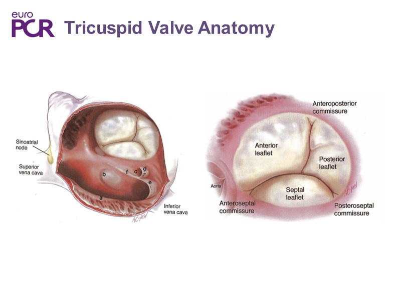 Cardioband Clinical Reality For Mitral And Tricuspid Valve Repair